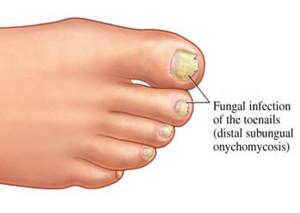 Toenail_Fungus_picture-300x213