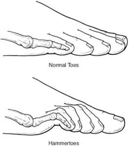 los_angeles_hammertoe_treatment-266x300