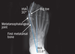 los_angeles_podiatrist_bunion_x_ray-300x216