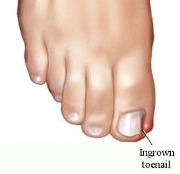 Ingrown Toenail Removal & Treatments